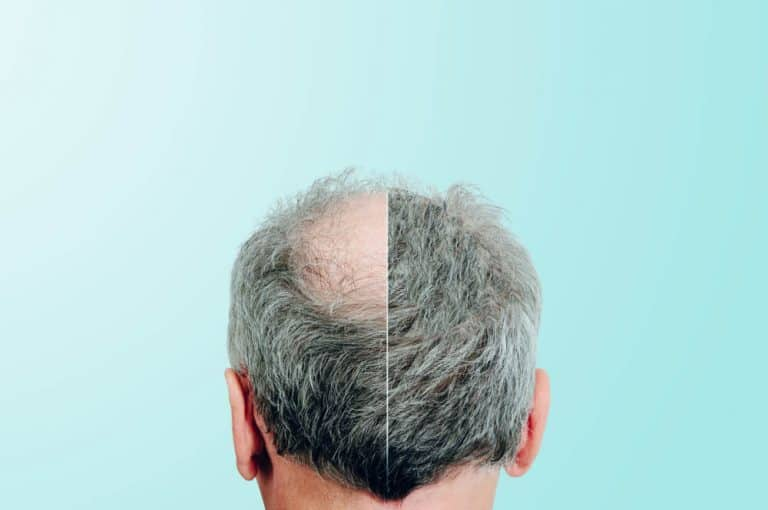 ניהול מוניטין חברת השתלת שיער